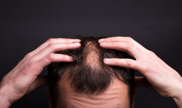 Czy istnieją skuteczne sposoby na męskie łysienie?
